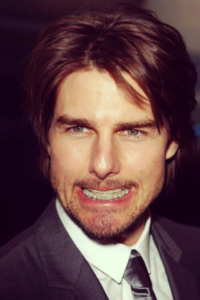 Tom-Cruise-Crossbite-Invisalign