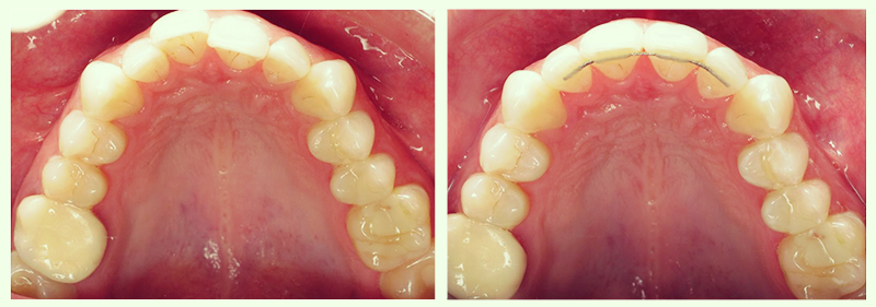 Braces Before and After with Retainer