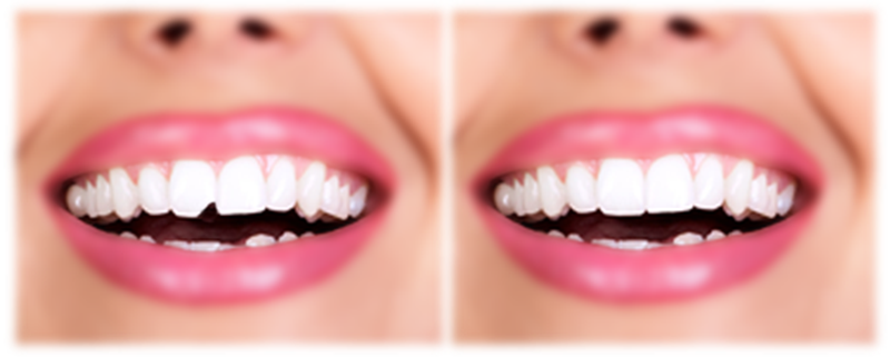 Chipped Tooth Before After Bonding