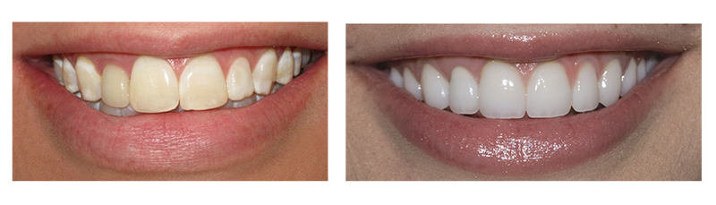Contouring and Reshaping Teeth