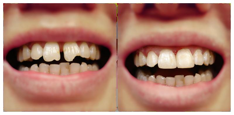 Dental Bonding Before After