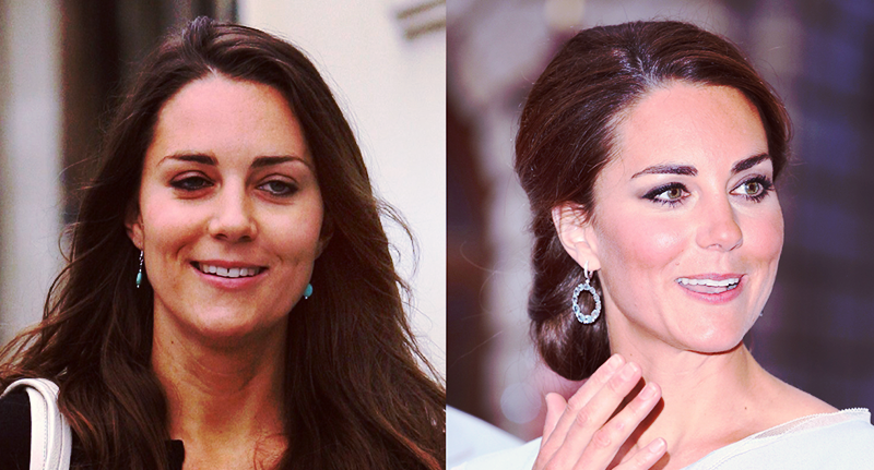 Princess Kate Before and After Braces