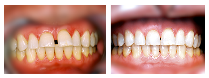 Teeth Gap Before After Bonding