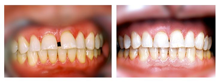 Teeth Gap Before After Bonding